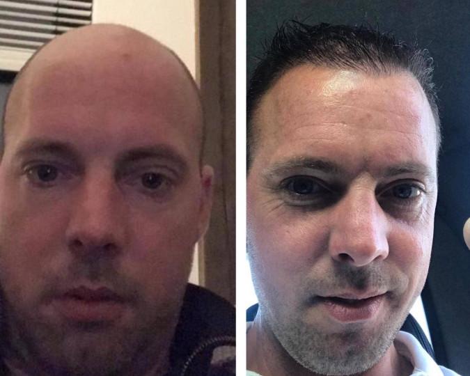 Haartransplantatie voor en na foto - 43569