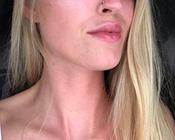 Lipfillers voor en na foto - 44108
