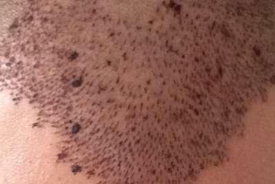Haartransplantatie voor en na foto - 5004