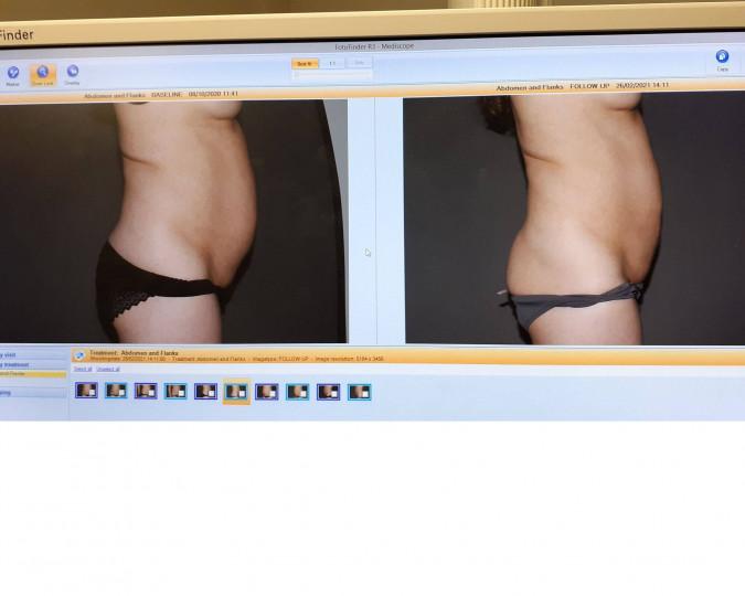 Liposuctie voor en na foto - 50054