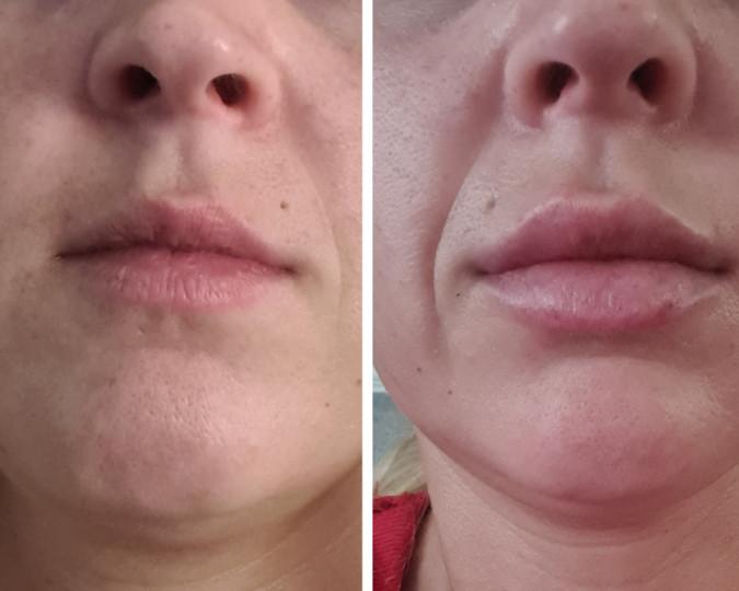 Botox voor en na foto - 52550