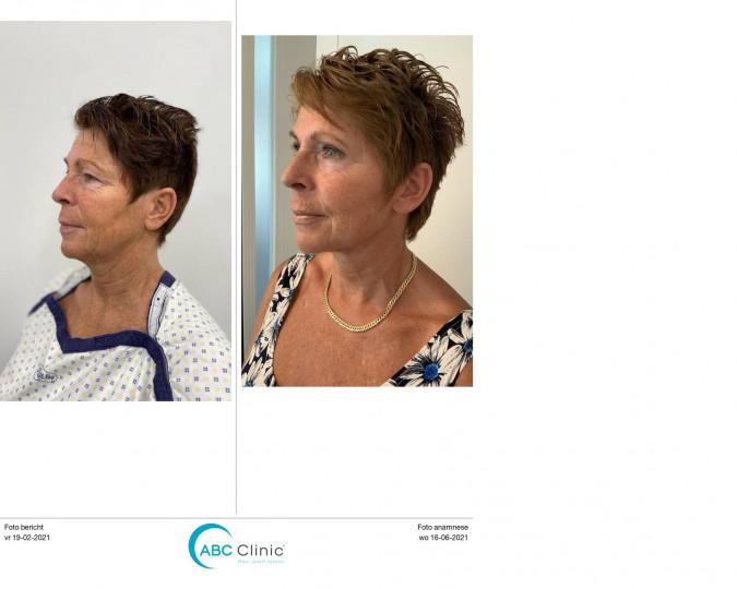 Facelift voor en na foto - 53896
