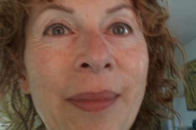 Botox voor en na foto - 6953