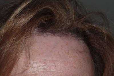 Haartransplantatie voor en na foto - 2138