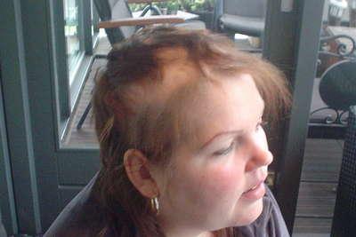 Haartransplantatie voor en na foto - 1160