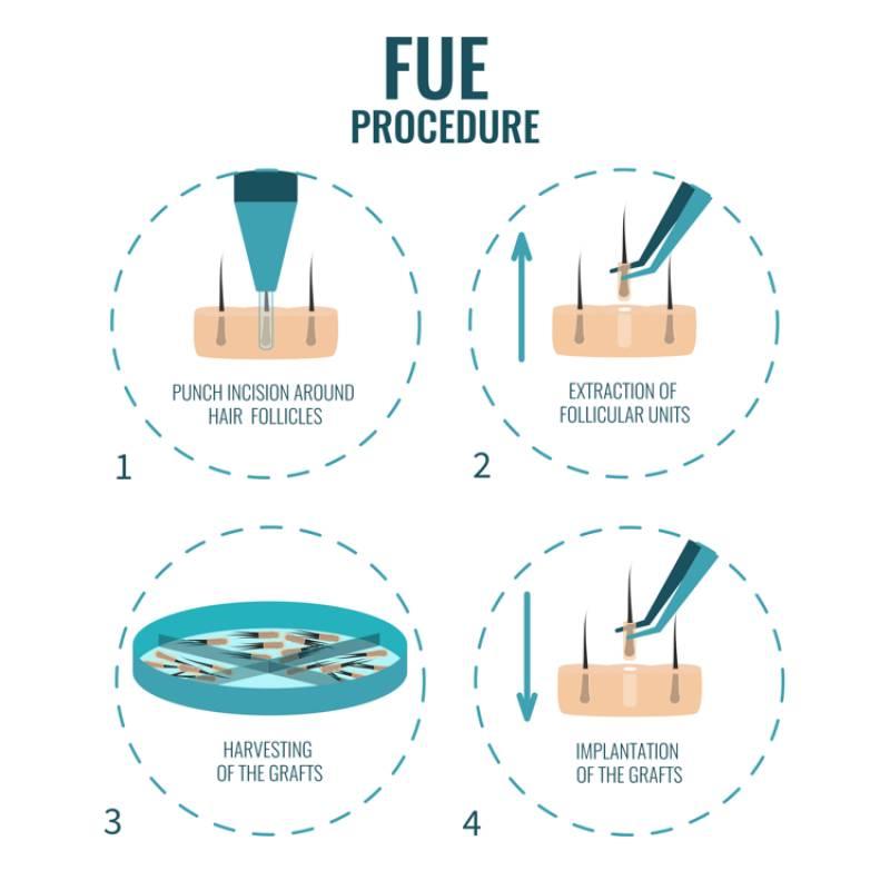 FUE-methode uitleg