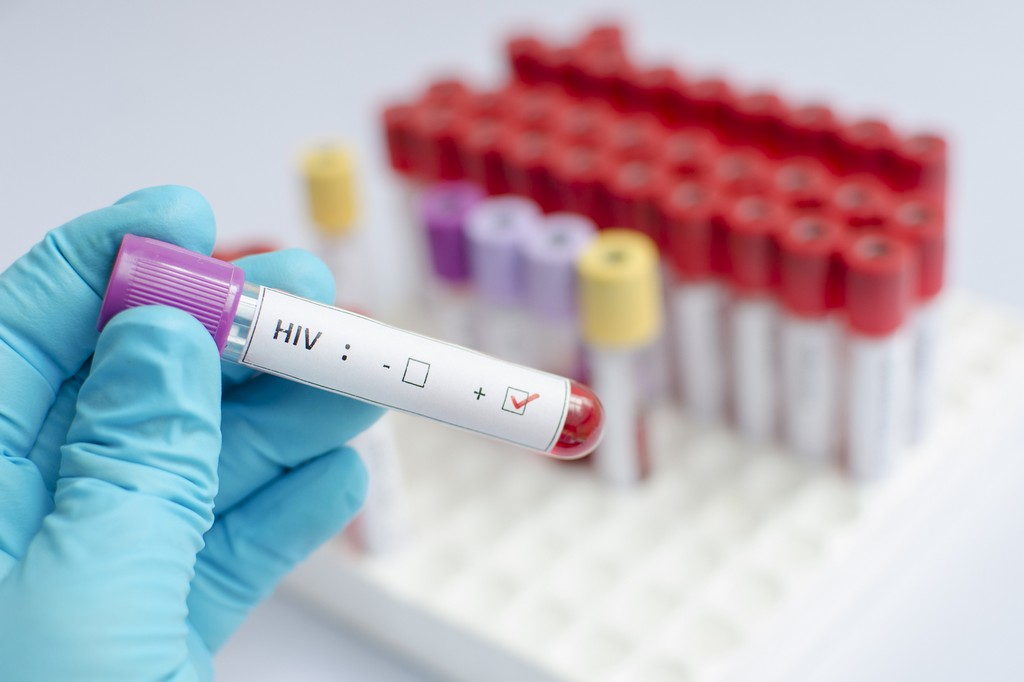 COVID-19 Lockdown could help us end HIV transmission - slika 1