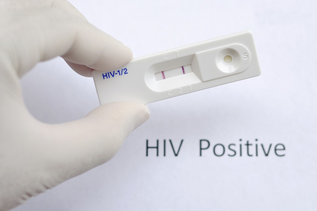 HIV Testing Kits Is Selling In Vending Machines To Curb HIV Epidemics Among Chinese Youth