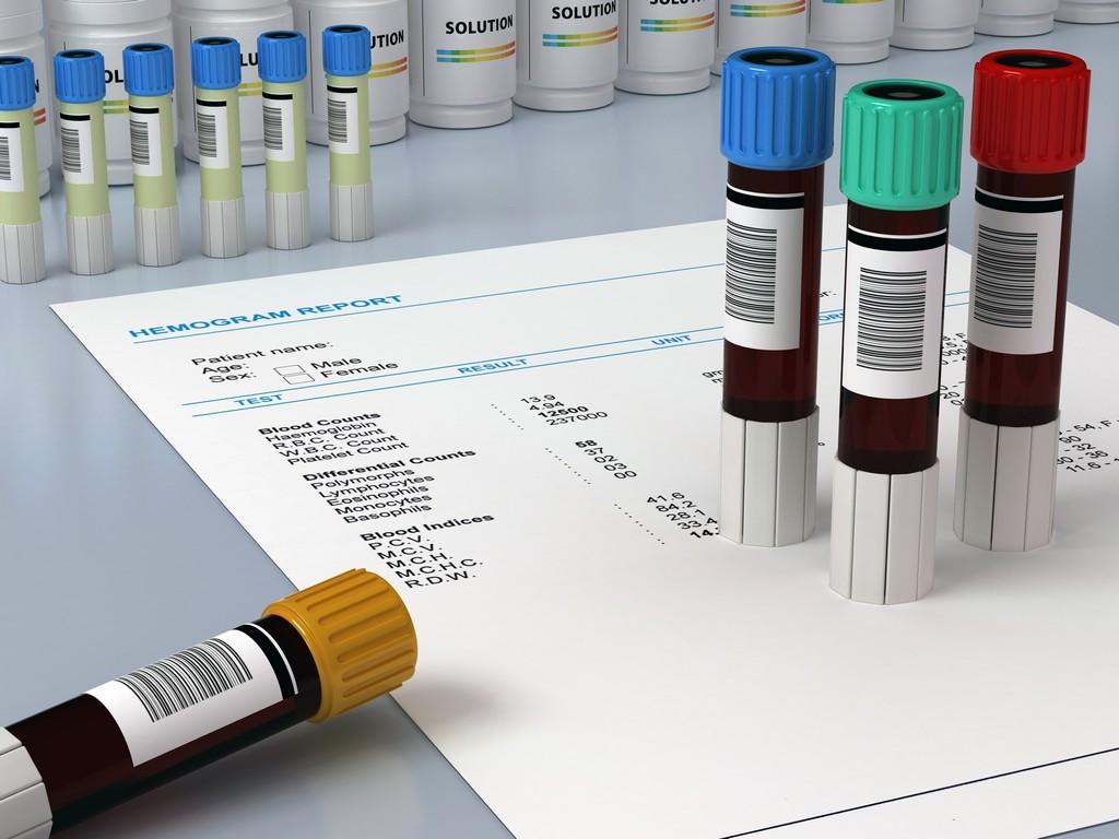 В России будут принимать сертификаты об отсутствии ВИЧ из других стран