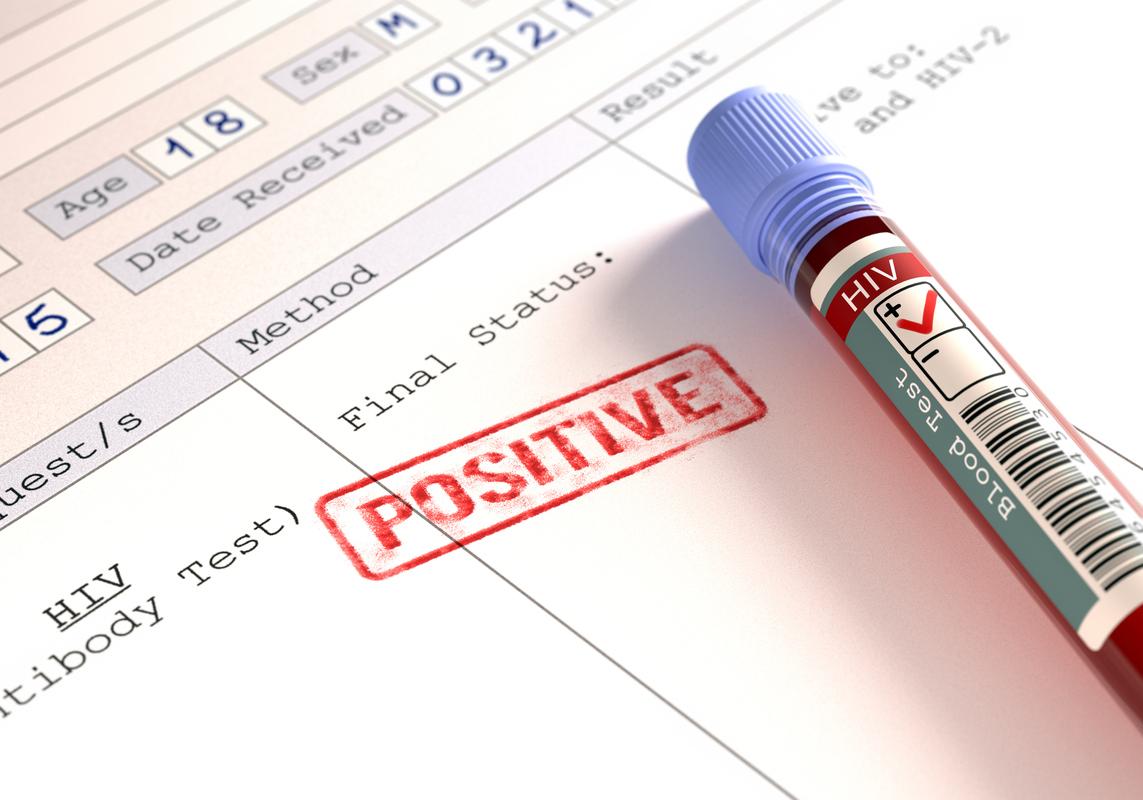 Шотландская полиция больше не будет регистрировать ВИЧ-статус граждан - изображение 1