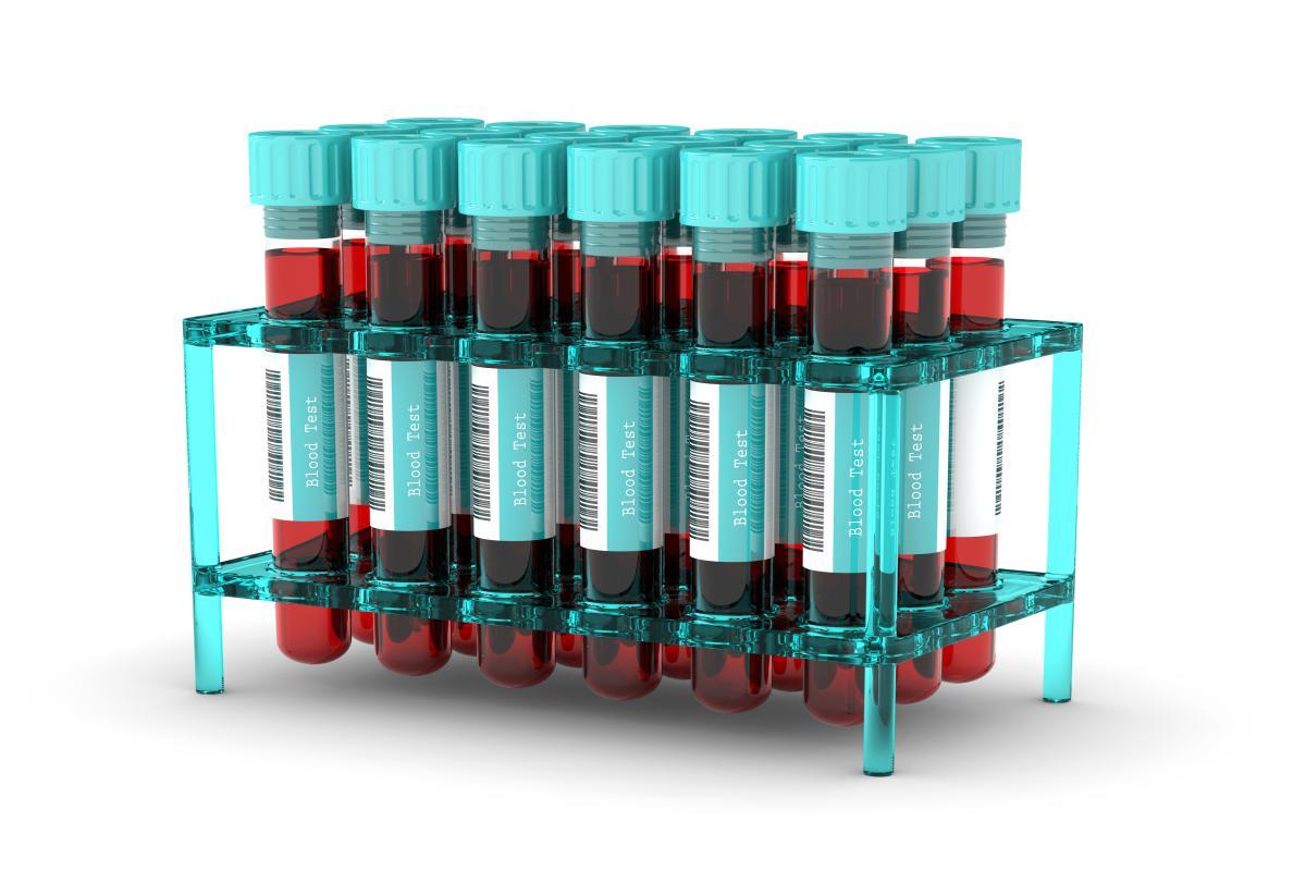 В Кургане планируют значительно расширить охват тестирования на ВИЧ