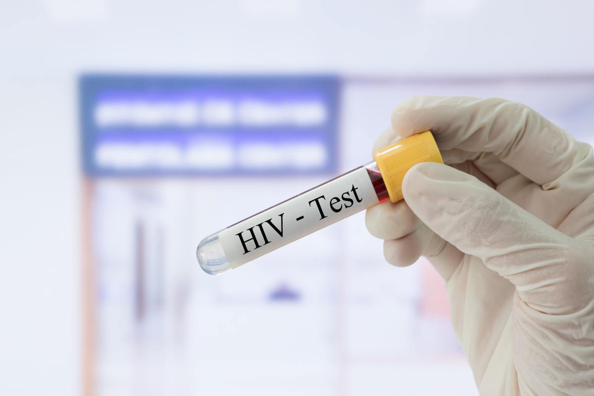 FDA одобрило тест на ВИЧ, который также измеряет и вирусную нагрузку