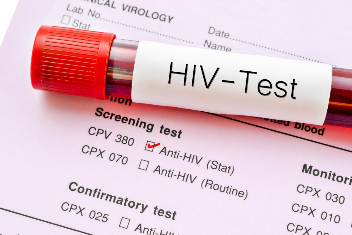 Минтранс предложил проверять на ВИЧ и гепатит С пилотов и бортпроводников