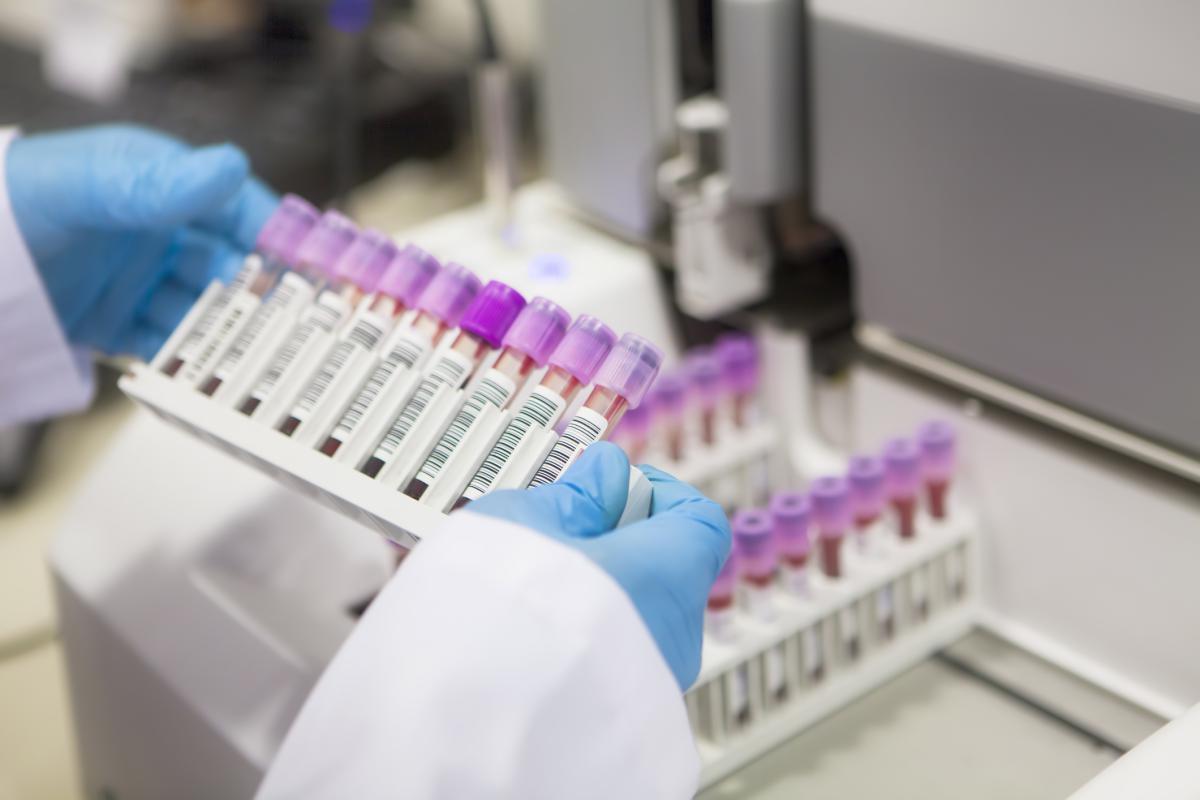 Тестирование ЛЖВ на резистентность к АРВТ может быть неэффективным - изображение 1