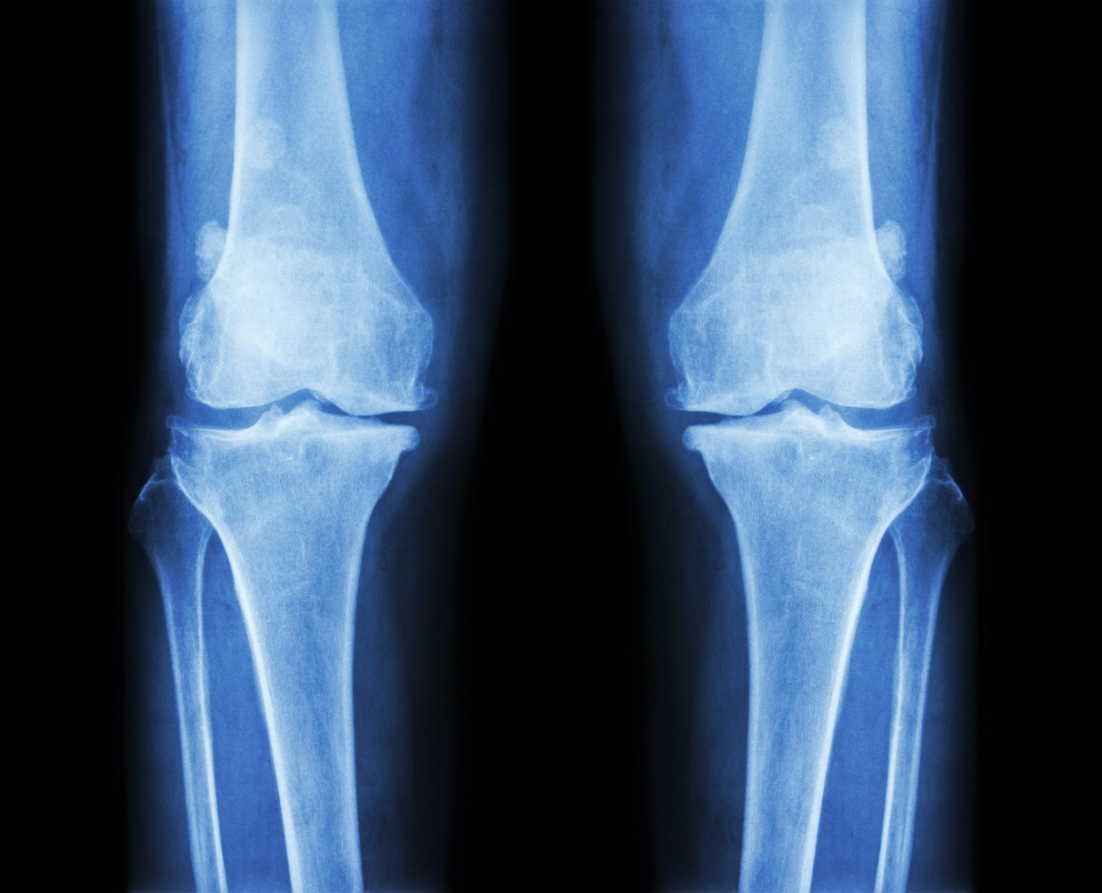 Bone Problems Appear to HIV-Positive People At an Earlier Age