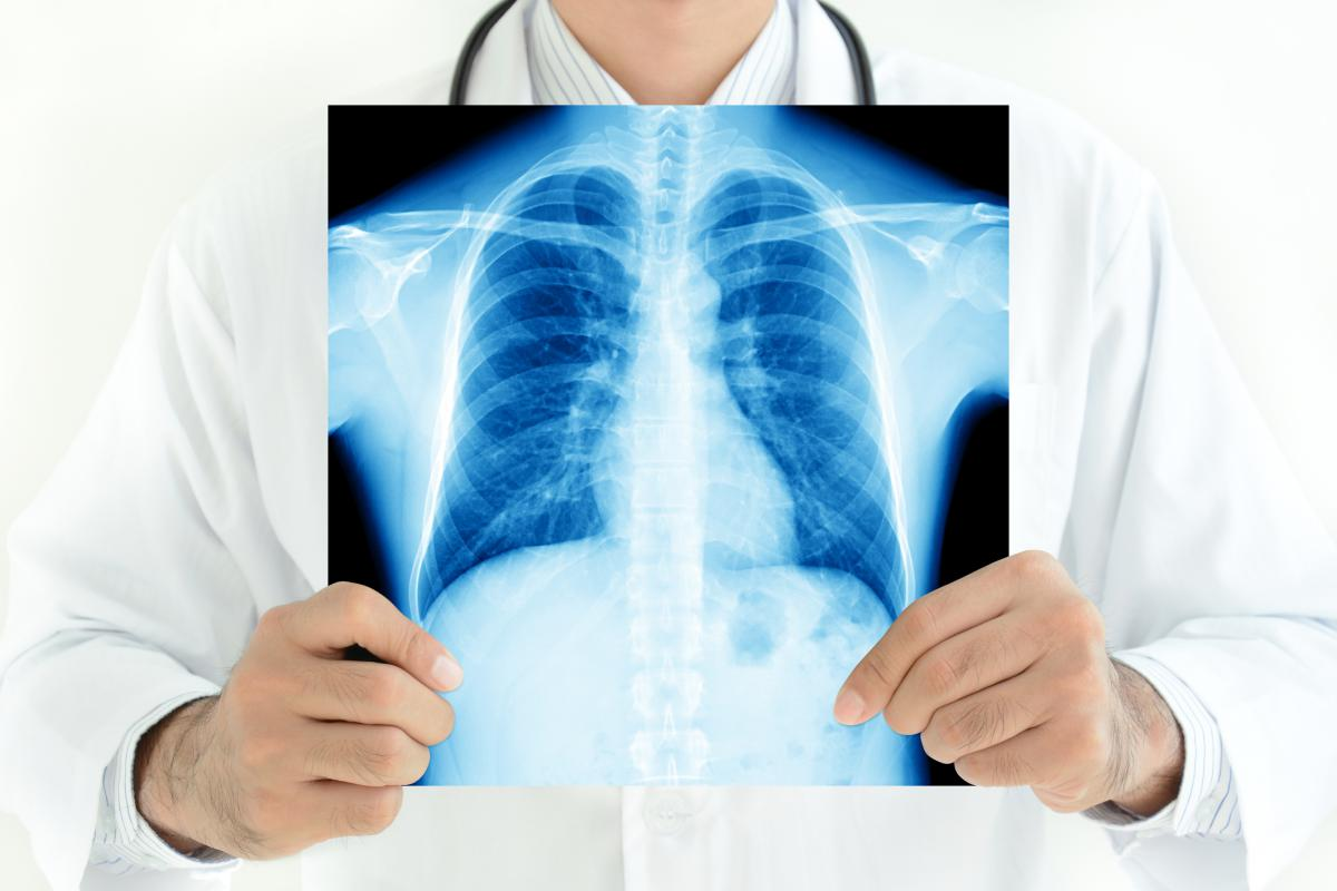 Video observation of tuberculosis treatment proved to be effective