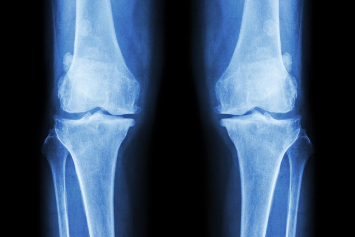 У детей с ВИЧ, принимающих АРВТ, более хрупкие кости