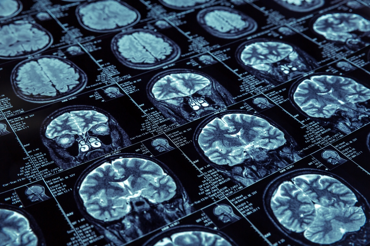 Смена режима АРВТ не влияет на риск развития деменции - изображение 1
