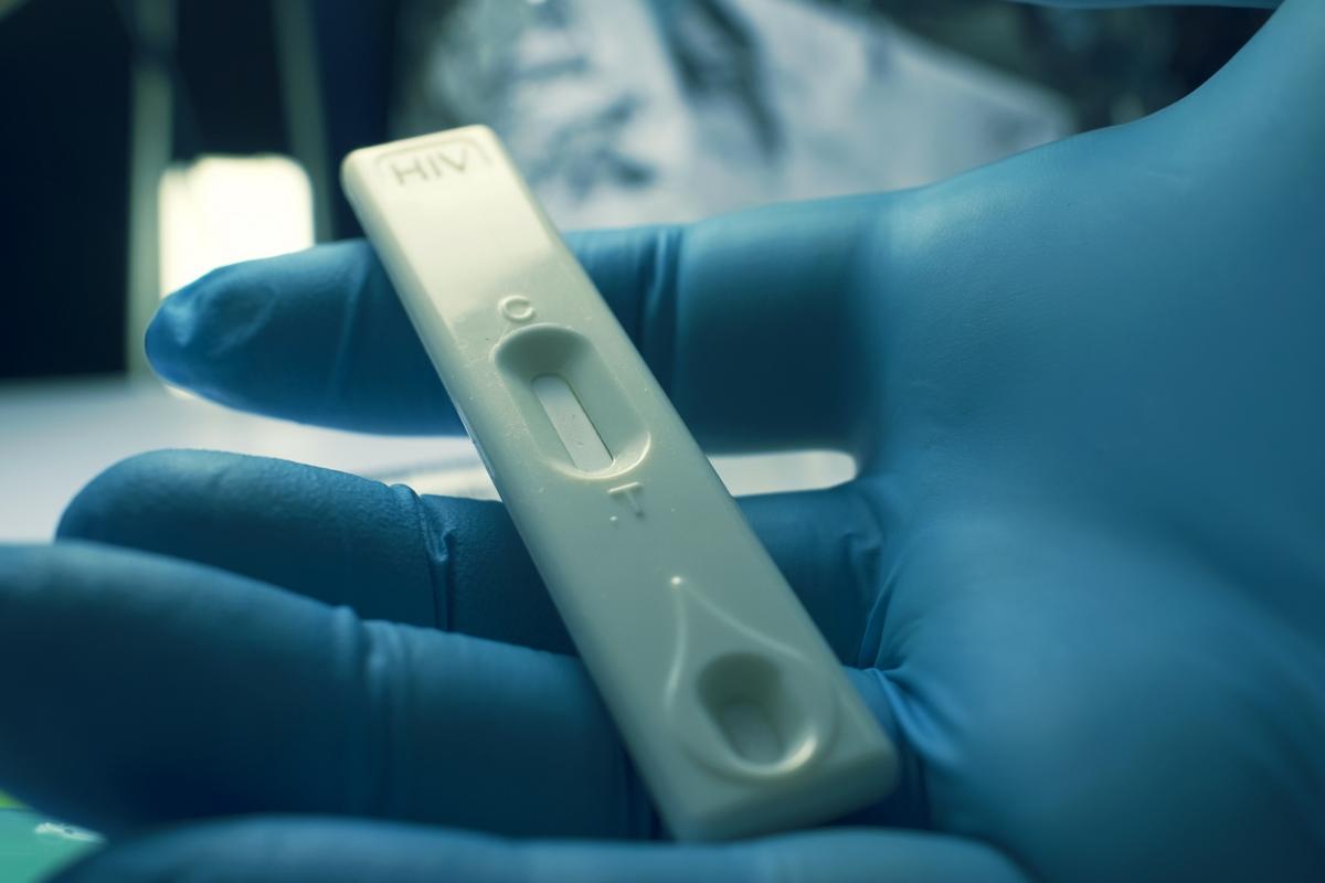 После прерывания АРВТ вирусная нагрузка ВИЧ в сперме быстро достигает определяемых уровней - изображение 1