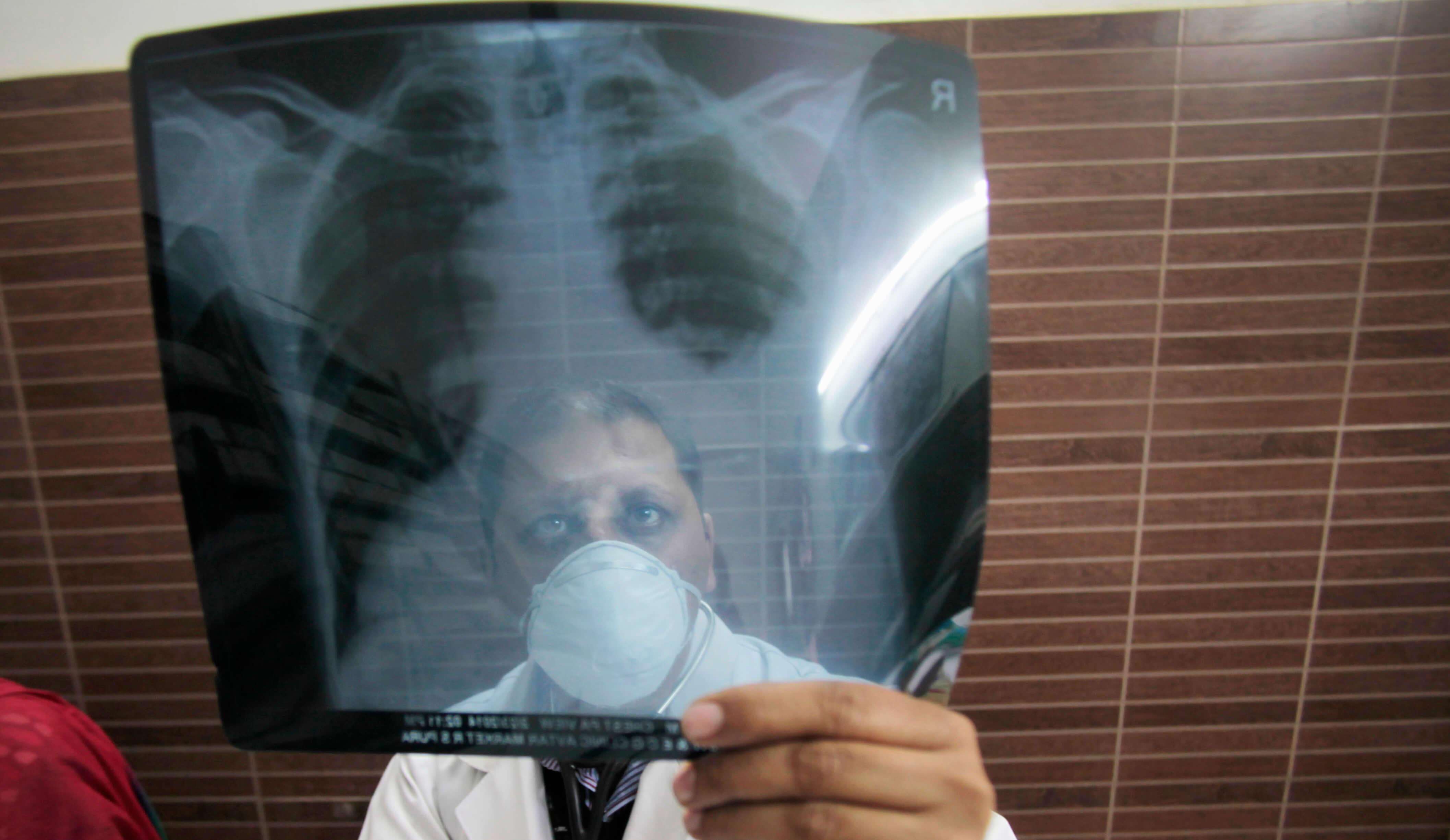 Diagnostika für Tuberkulose noch immer zu teuer - Bild 1