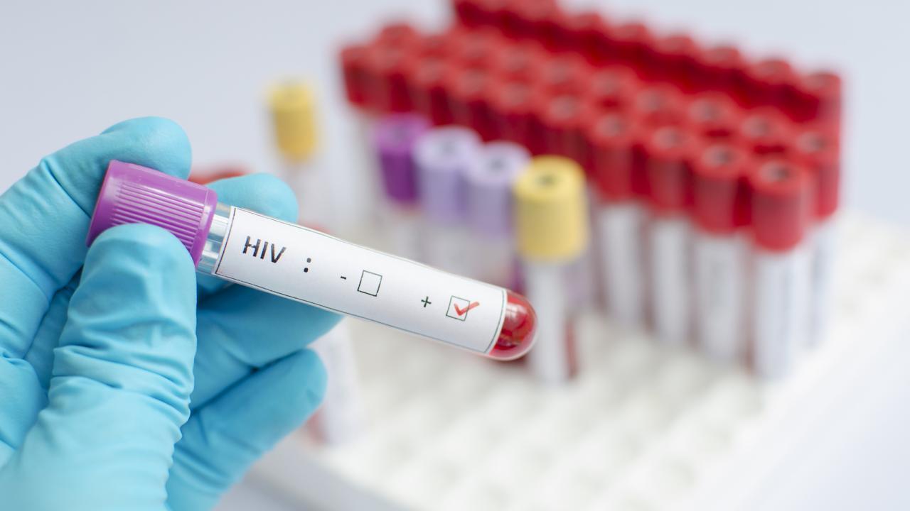 В 2015 году свыше 60% новых случаев заражения ВИЧ в Европе приходились на Россию - изображение 1