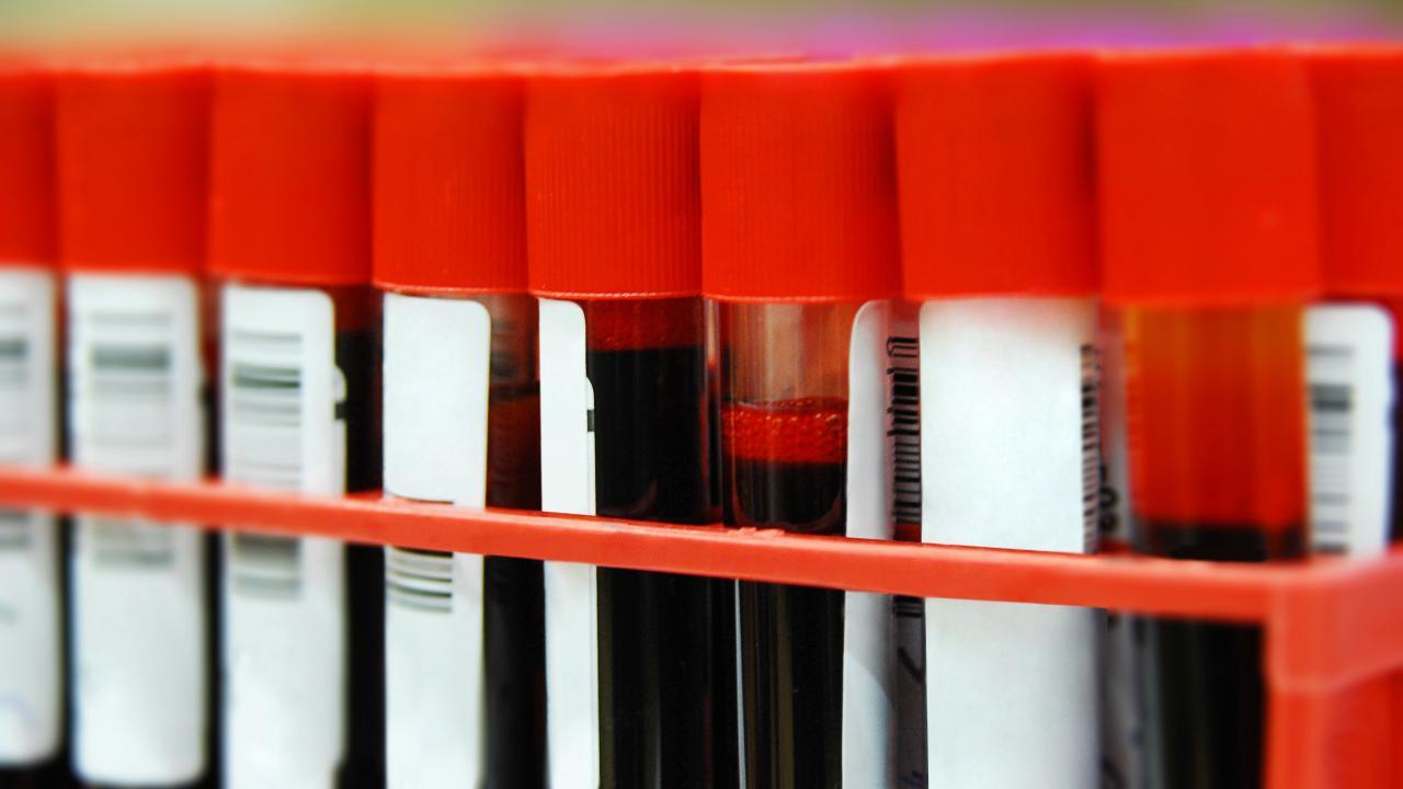 Покровский раскритиковал идею создания федерального регистра ВИЧ-инфицированных пациентов