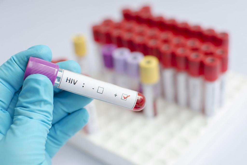 Testing for HIV Is Now Compulsory in Zambia