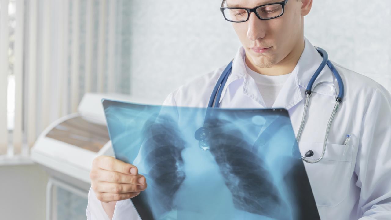 Study: Direct transmission drives drug-resistant TB epidemic