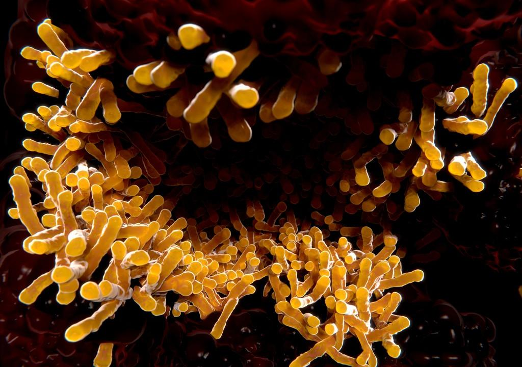 HIV Drives Evolution Of Tuberculosis Bacterium