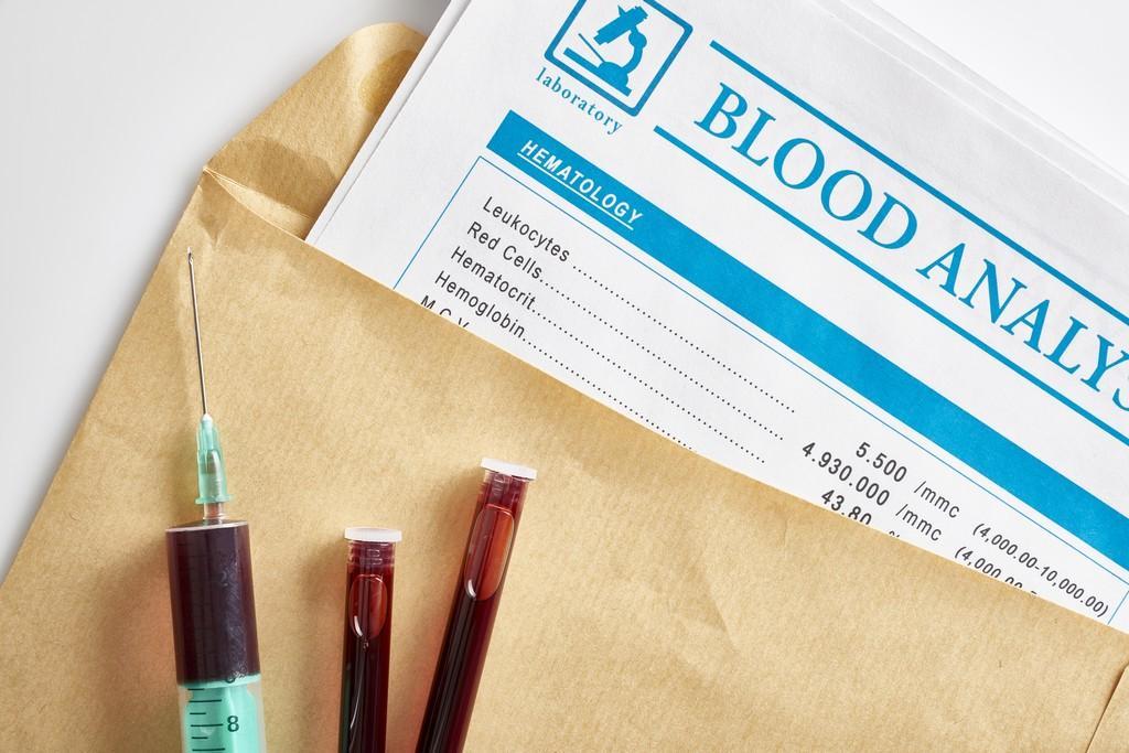 Страховая компания раскрыла ВИЧ-положительный статус у 12 тысяч своих клиентов