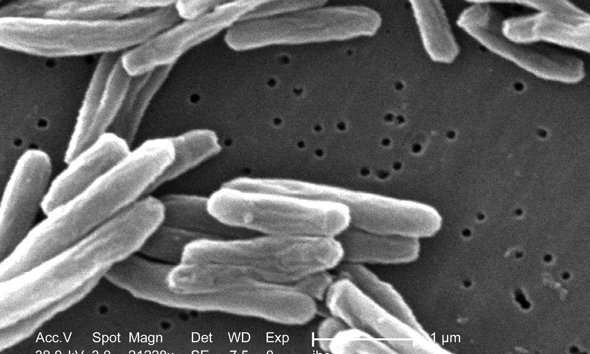 New Drug Lead From Soil Bacteria Compound Identified To Fight Against Tuberculosis - picture 1