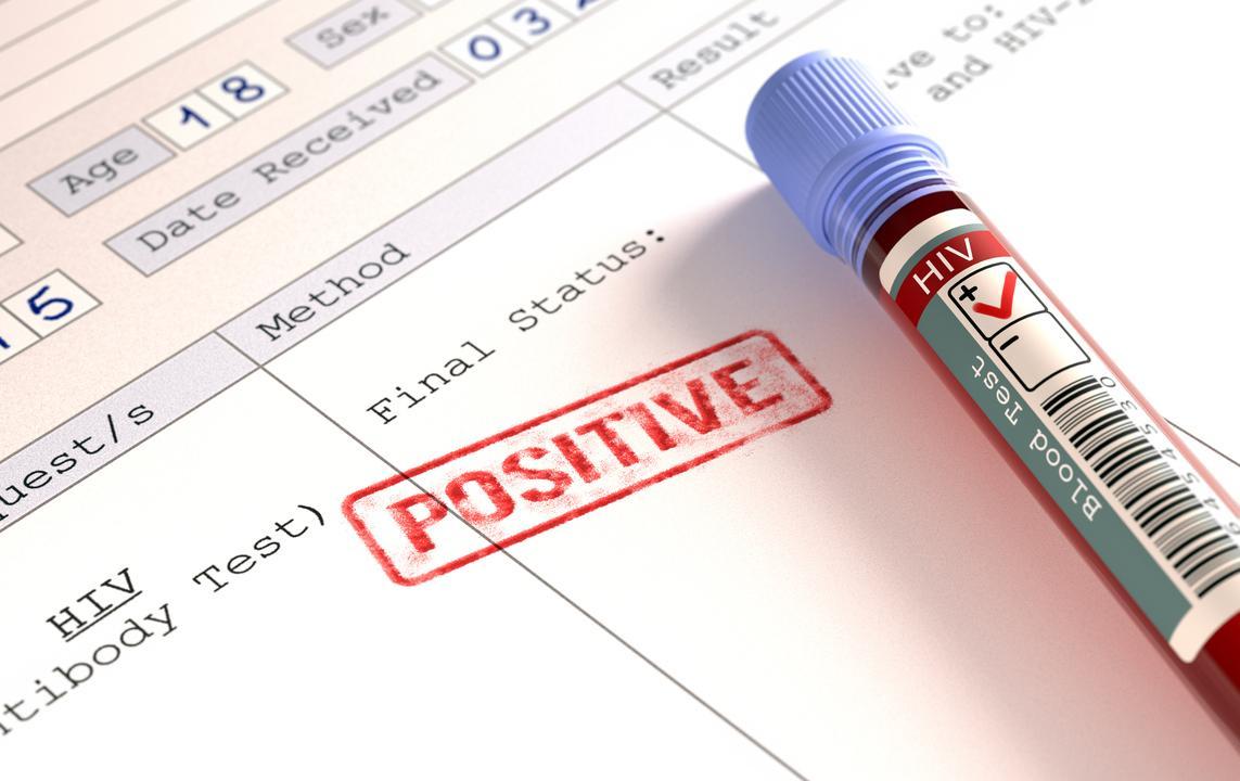 В Магнитогорске заявили об улучшении ситуации с ВИЧ - изображение 1