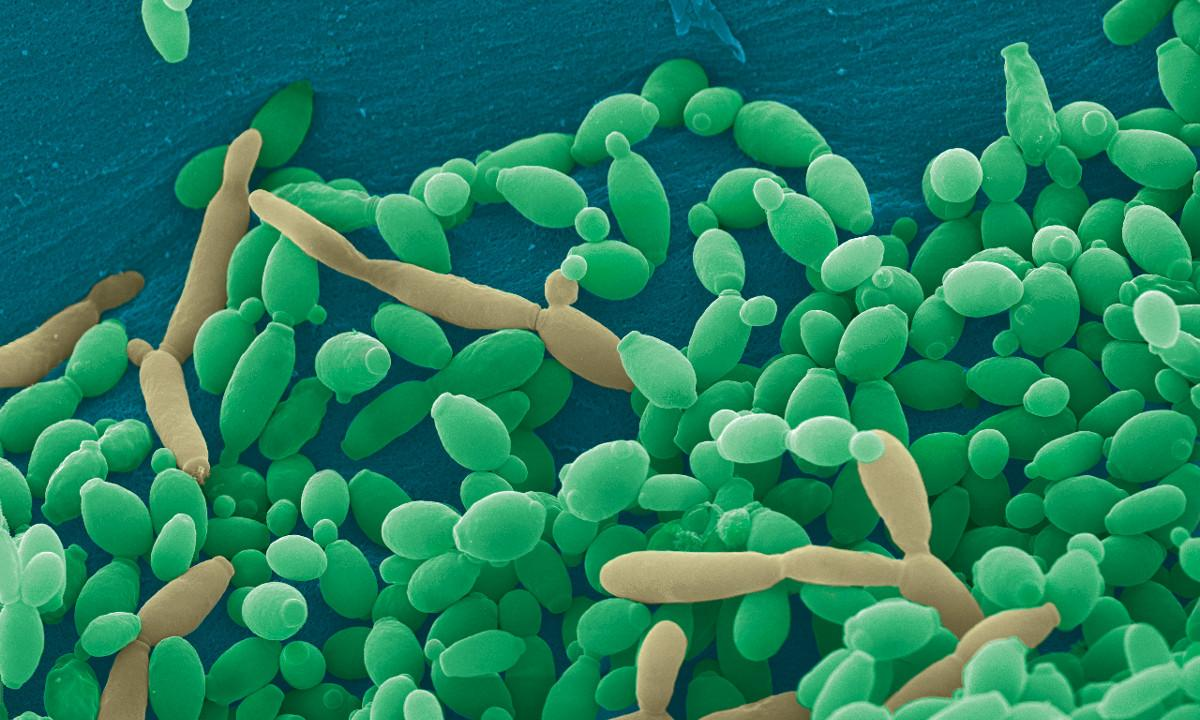 Several Strains of Сandida Proved To Be Resistant To All Available Antifungal Agents - picture 1