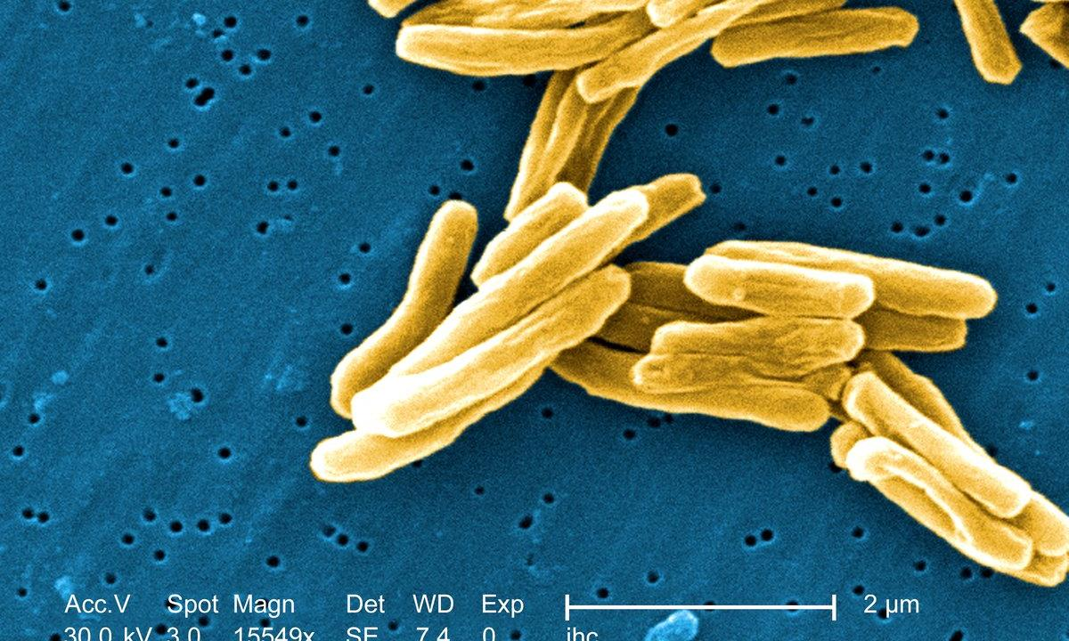 Marine Plants Could Potentially Cure TB