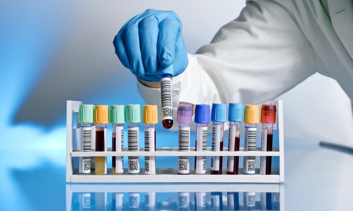 Повышенные маркеры воспаления при ВИЧ влияют на риск ухудшения состояния при COVID-19