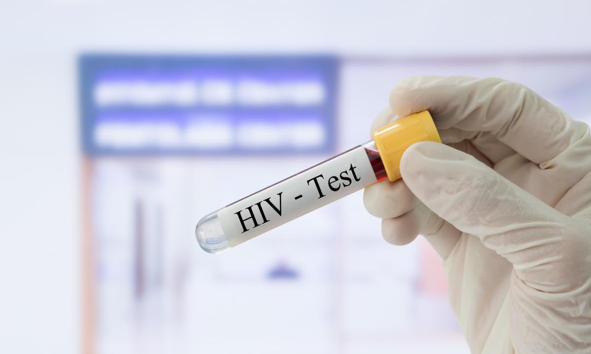 Крым: цель по тестированию на ВИЧ выполнена на 98,3 %