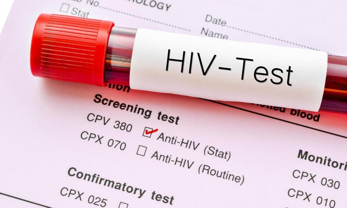 Эксперты определили оптимальный возраст для тестирования наВИЧ - изображение 1