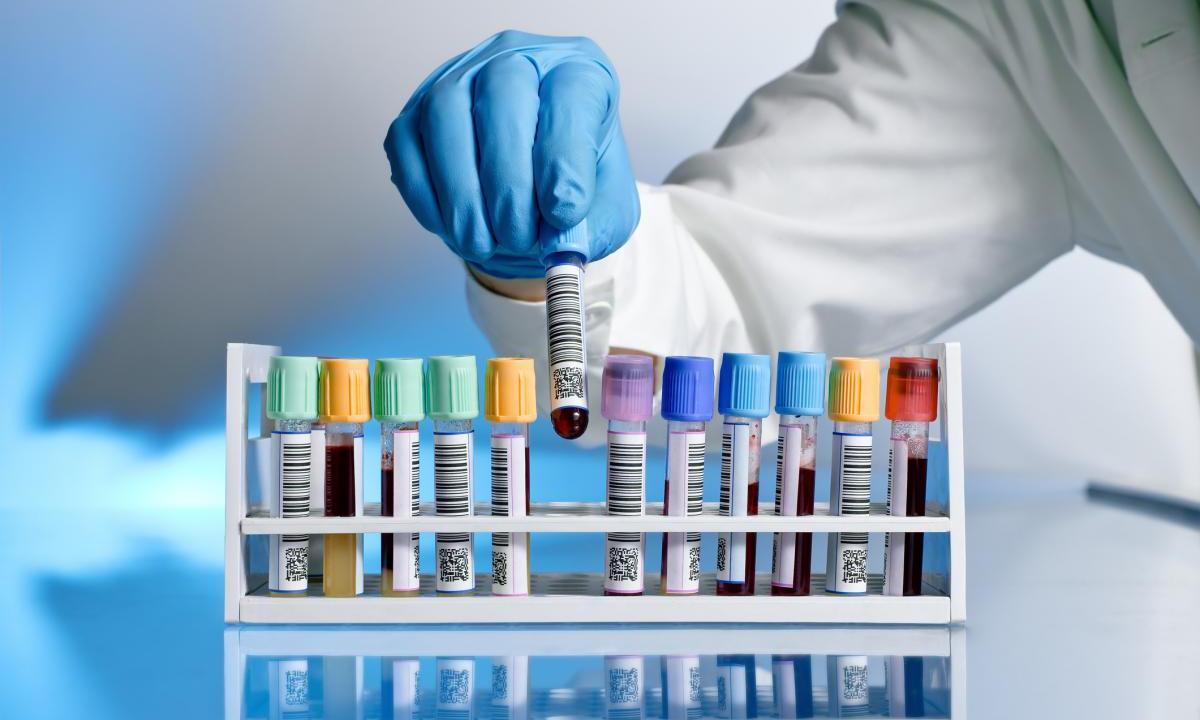 «Не гадай – пройди тест»: в Ереване проходит кампания по бесплатному тестированию на ВИЧ, сифилис, гепатит В и С