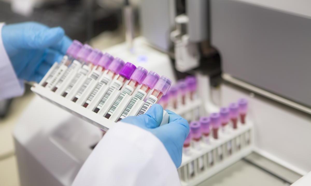 Ученые: уровень заболеваемости ВИЧ в России продолжает расти