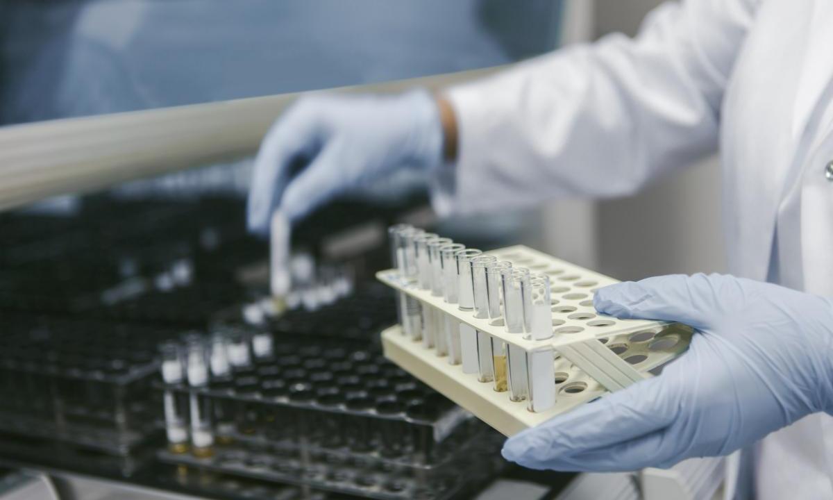 ВИЧ-активисты сообщили о проблемах с поставками в регионы диагностических реагентов - изображение 1