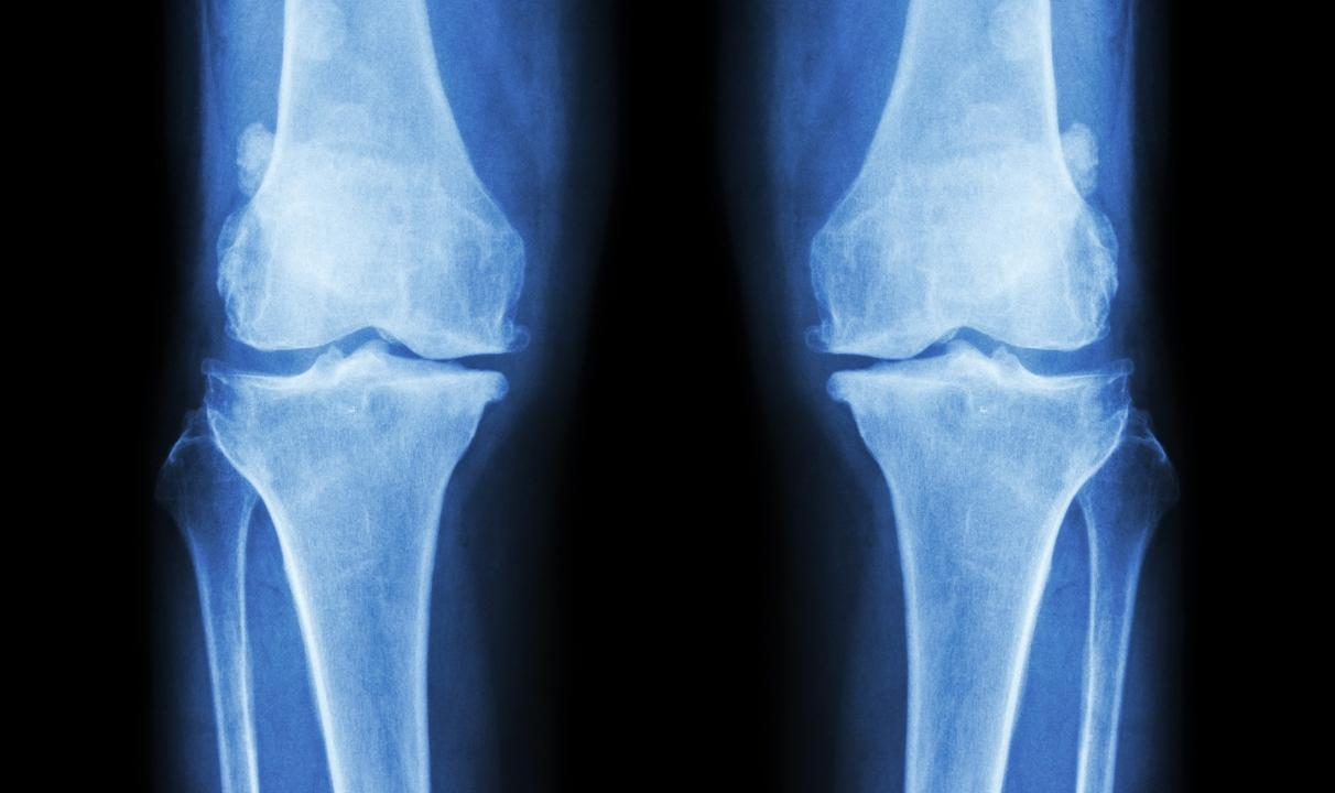 Bone Problems Appear to HIV-Positive People At an Earlier Age - picture 1