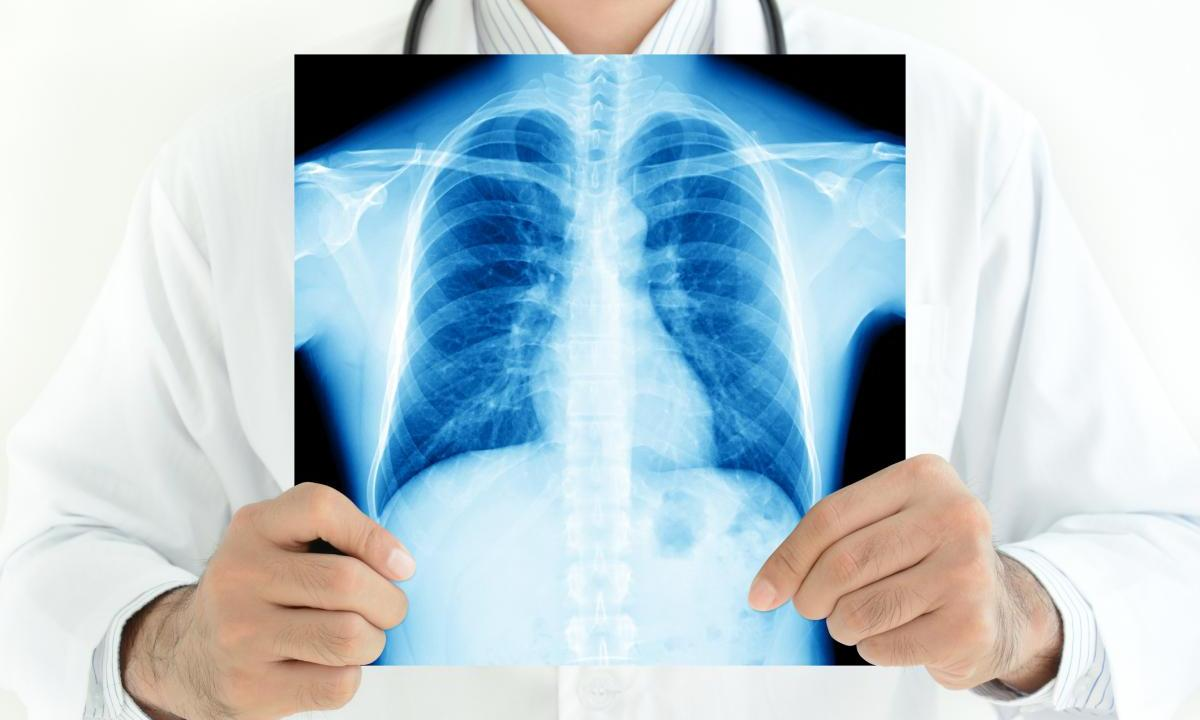Video observation of tuberculosis treatment proved to be effective - foto 1
