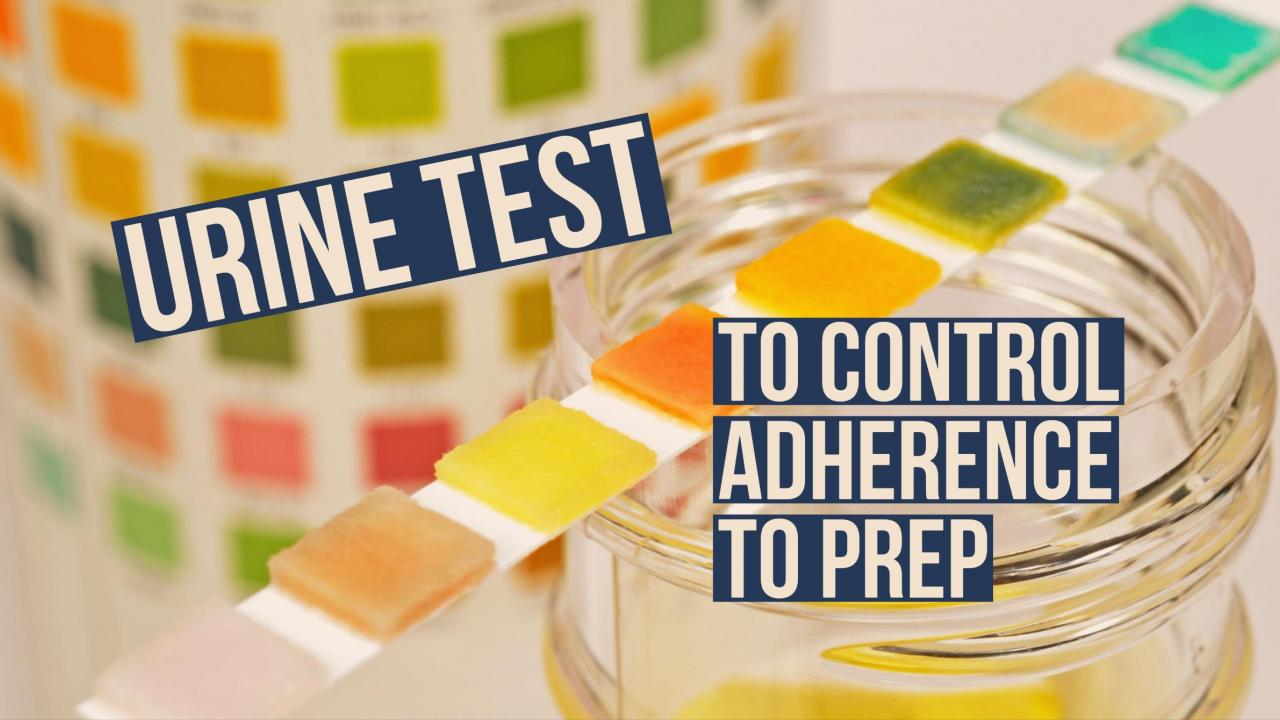 UPenn Researchers Developed an Urine Test for Tenofovir to Monitor Adherence among people on PrEP