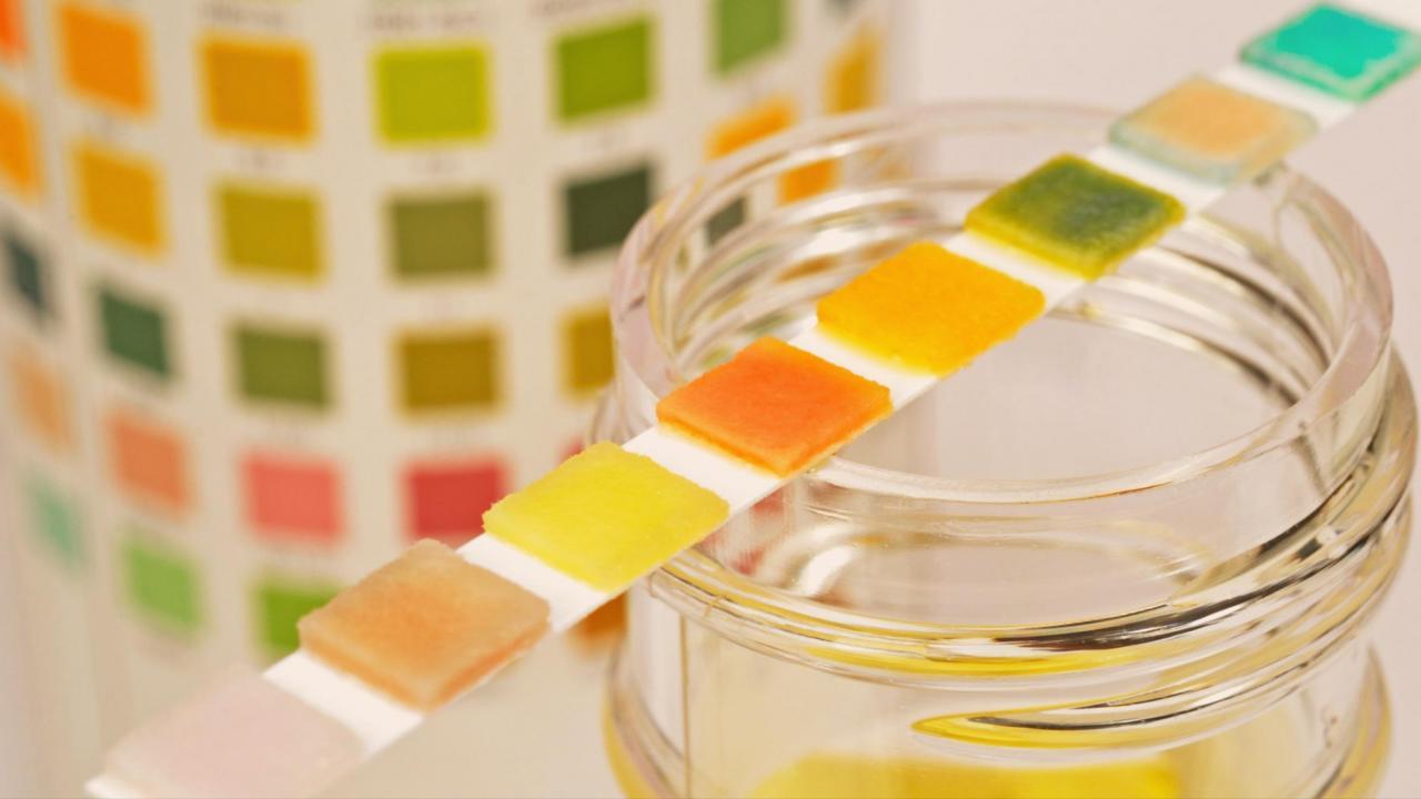Тест мочи на Тенофовир для контроля за приверженностью за приёмом препарата