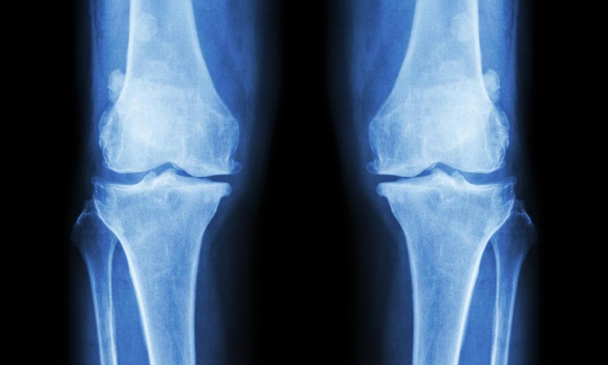 Комбинированная АРВТ снижает риск развития полинейропатии у людей с ВИЧ