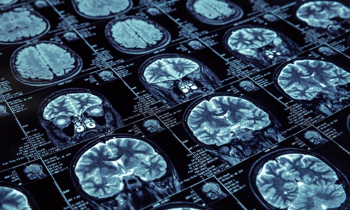 Смена режима АРВТ не влияет на риск развития деменции
