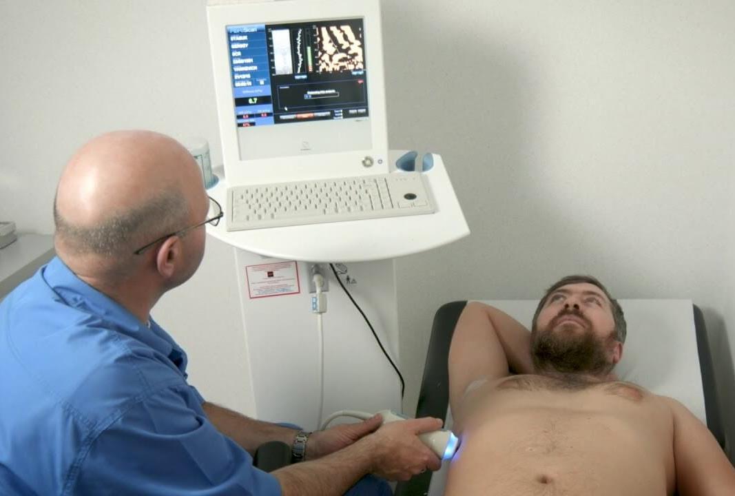 Неинвазивная диагностика фиброза должна быть более распространена среди пациентов с ВИЧ - изображение 1