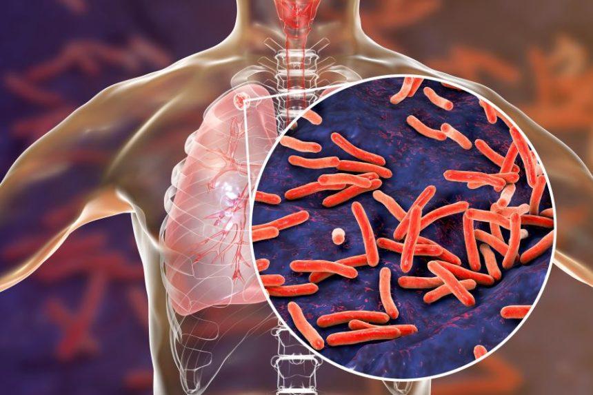 Посттуберкулезные изменения в легких при ВИЧ-ассоциированном ТБ