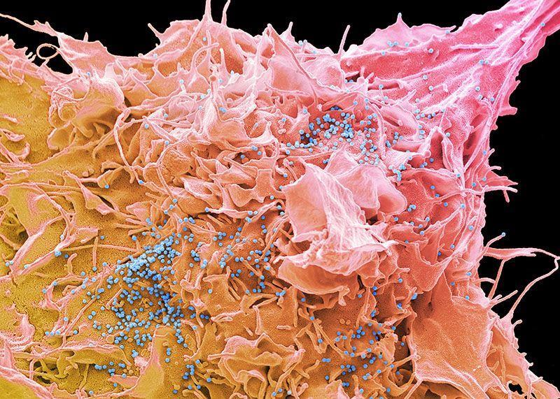 Ученые описали механизм развития устойчивости ВИЧ к долутегравиру