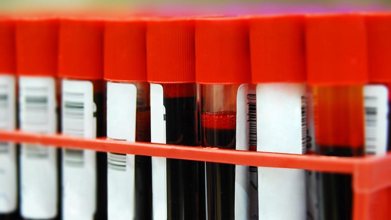 В Европе зарегистрирован новый препарат для лечения вирусного гепатита С